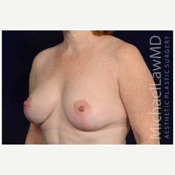 45-54 year old woman treated with Breast Lift after 3070810