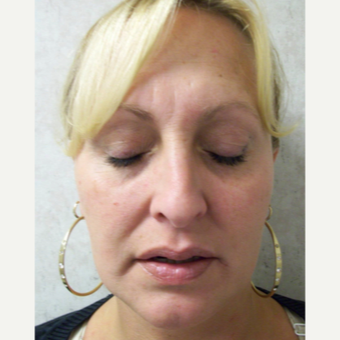35-44 year old woman treated with Rhinoplasty before 3691950