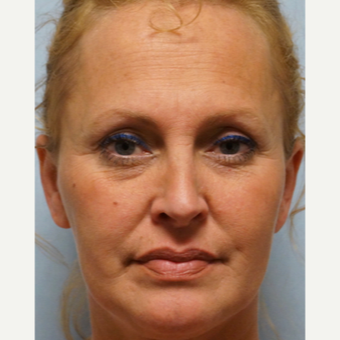35-44 year old woman treated with Rhinoplasty after 3691950