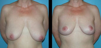 43 Year Old Woman - Breast Lift before 1086291