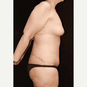 Body Contouring after Sleeve Gastrectomy after 3332777