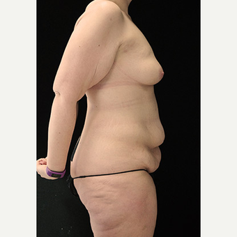 Body Contouring after Sleeve Gastrectomy before 3332777