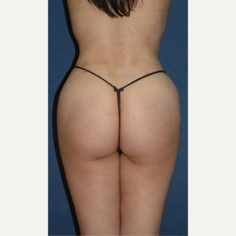 45-54 year old woman treated with Brazilian Butt Lift after 2248113