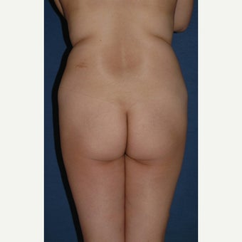 45-54 year old woman treated with Brazilian Butt Lift before 2248113