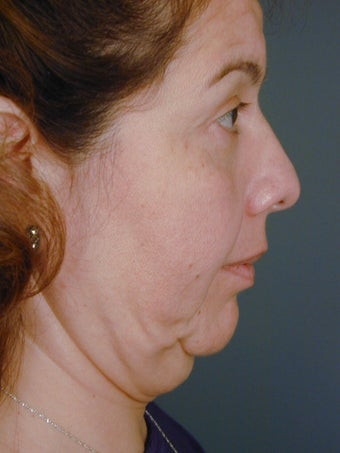 Female Chin Implant before 831856
