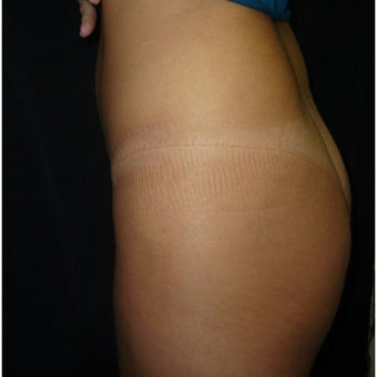 35-44 year old woman treated with Butt Implants before 2065832