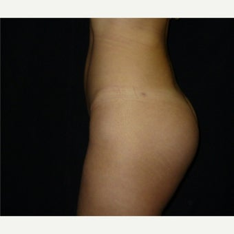 35-44 year old woman treated with Butt Implants after 2065832