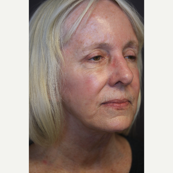 Lower face and neck lift after 3613799