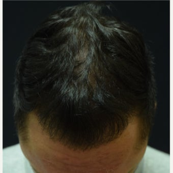 25-34 year old man treated with FUE Hair Transplant after 2573195