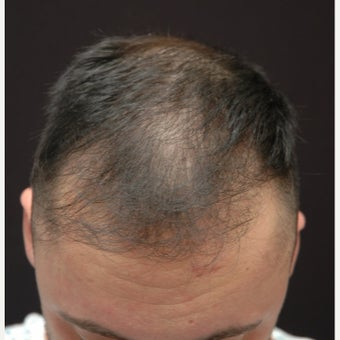 25-34 year old man treated with FUE Hair Transplant before 2573195