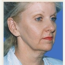 55-64 year old woman treated with Facelift before 1842680