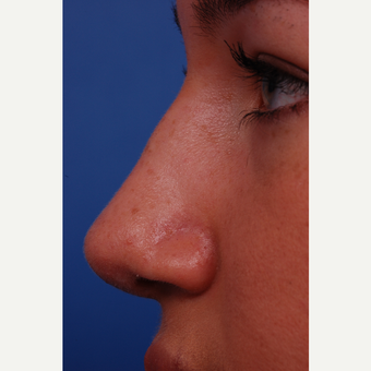 17 or under year old woman treated with Rhinoplasty after 3175256