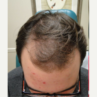 18-24 year old man treated with PRP for Hair Loss before 3195473