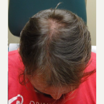 18-24 year old man treated with PRP for Hair Loss after 3195473