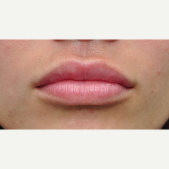 18-24 year old woman desires fuller lips after 2939968