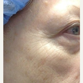 65-74 year old woman treated with Pelleve 1599204