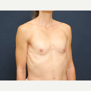 25-34 year old woman treated with Breast Augmentation before 3344095