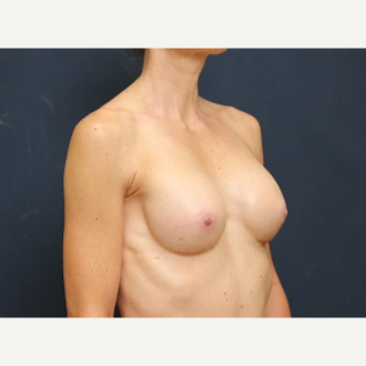 25-34 year old woman treated with Breast Augmentation after 3344095