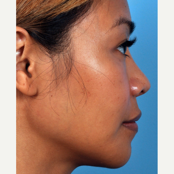 35-44 year old woman treated with Rhinoplasty after 3815661