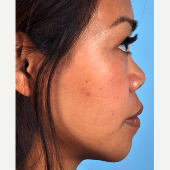 35-44 year old woman treated with Rhinoplasty before 3815661