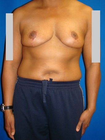 Breast reduction after 78036