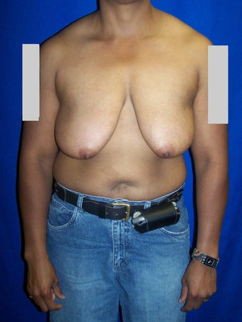 Breast reduction before 78036