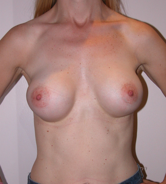 Breast Implant  992080