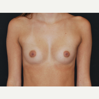 18-24 year old woman treated with Breast Implants before 3651140