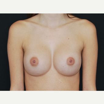 18-24 year old woman treated with Breast Implants after 3651140