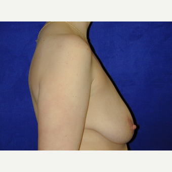 25-34 year old woman treated with Breast Lift before 3766233
