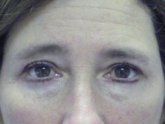 Lower Lid Blepharoplasty after 210339
