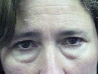 Lower Lid Blepharoplasty before 210339