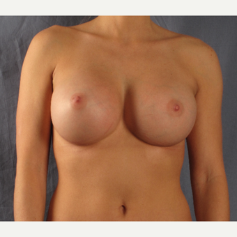 35-44 year old woman treated with Breast Augmentation after 3537674