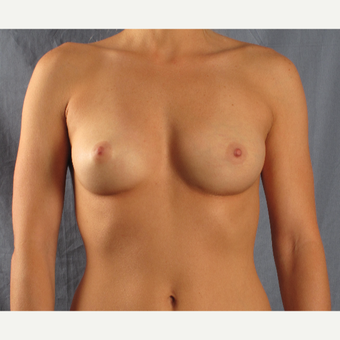 35-44 year old woman treated with Breast Augmentation before 3537674