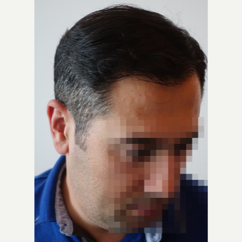 35-44 year old man treated with FUE Hair Transplant after 3682592