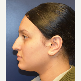 18-24 year old woman treated with Rhinoplasty before 2979657