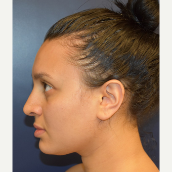 18-24 year old woman treated with Rhinoplasty after 2979657