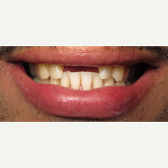 25-34 year old man treated with Dental Implants 1954676