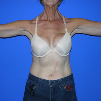 45-54 year old woman treated with Smart Lipo after 3730704