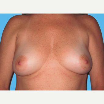 Breast Augmentation before 3732479