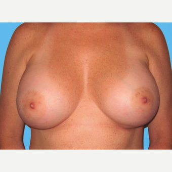 Breast Augmentation after 3732479