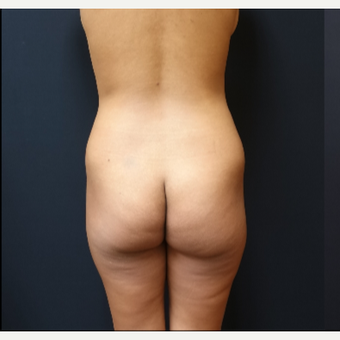 25-34 year old woman treated with Fat Transfer before 3731828
