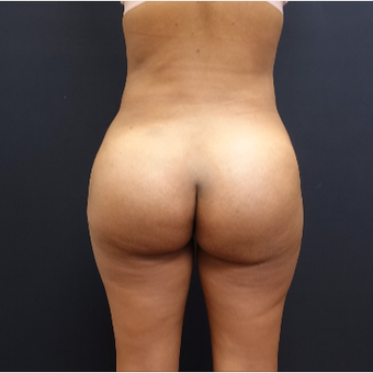 25-34 year old woman treated with Fat Transfer after 3731828