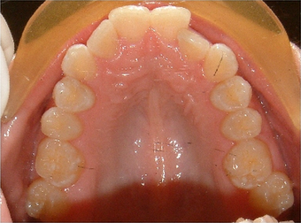Invisalign treatment for crowded teeth with a cross-bite  before 881776