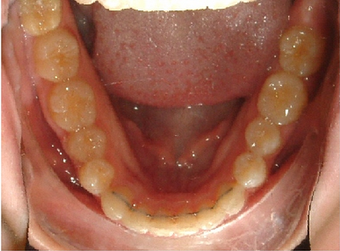Invisalign treatment for crowded teeth with a cross-bite  881776