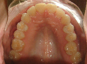 Invisalign treatment for crowded teeth with a cross-bite  after 881776