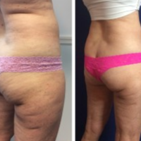 65-74 year old woman treated with SculpSure before 3494171