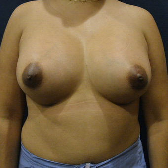25-34 year old woman treated with Breast Augmentation after 3726749