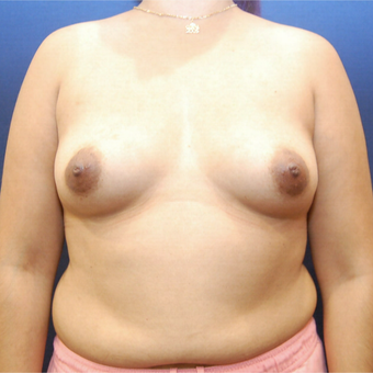 25-34 year old woman treated with Breast Augmentation before 3726749