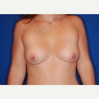 25-34 year old woman treated with Breast Augmentation before 3696150